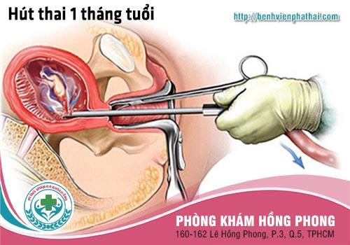 Thai 1 tháng tuổi phá bằng phương pháp hút